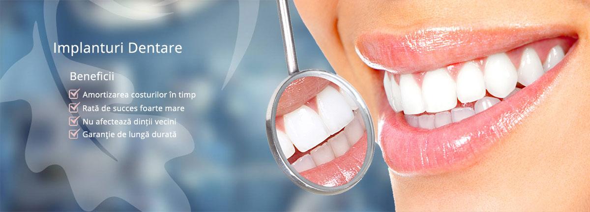 Doriti implanturi dentare? Iata ce trebuie sa stiti